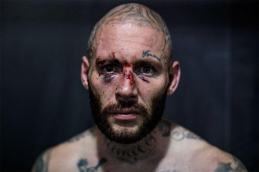 knuckle boxers tattoos men injured