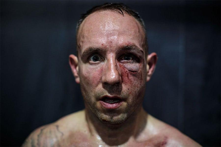 knuckle boxers left eye injured