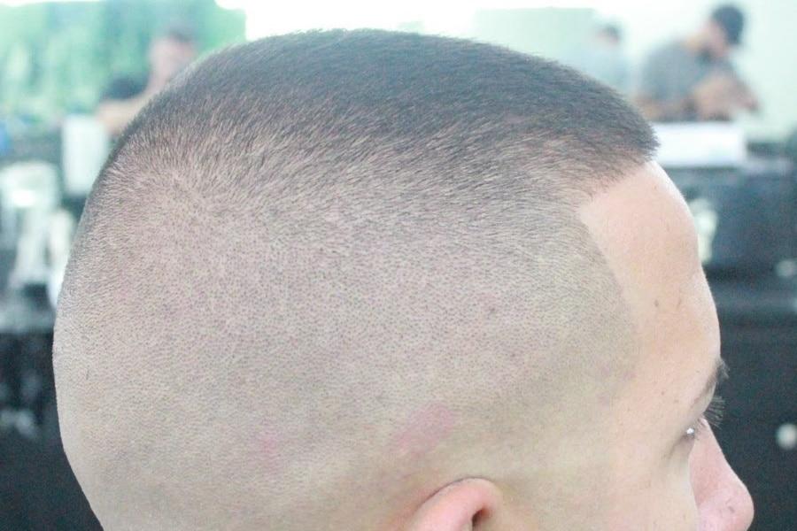 Bald Fade Haircut - Receding Hairline