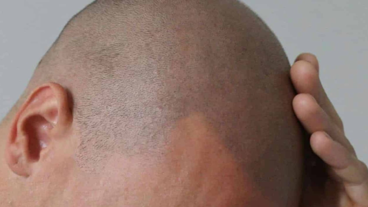A Guide To Hairline Tattoos Man Of Many