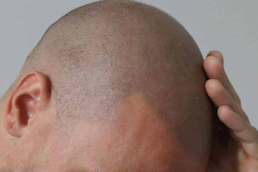 A man's scalp with new grown hairs on bald scalp
