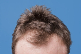 A hair-loss suffering man's head with baldness in front