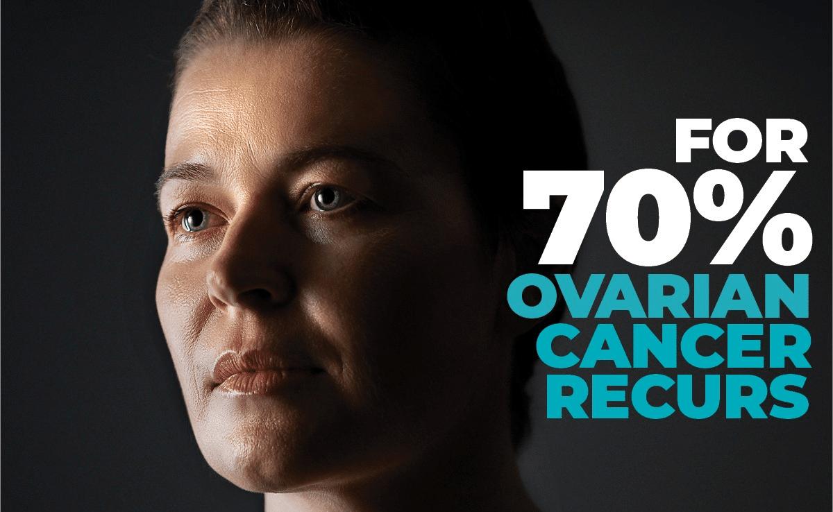 Ovarian Cancer 2