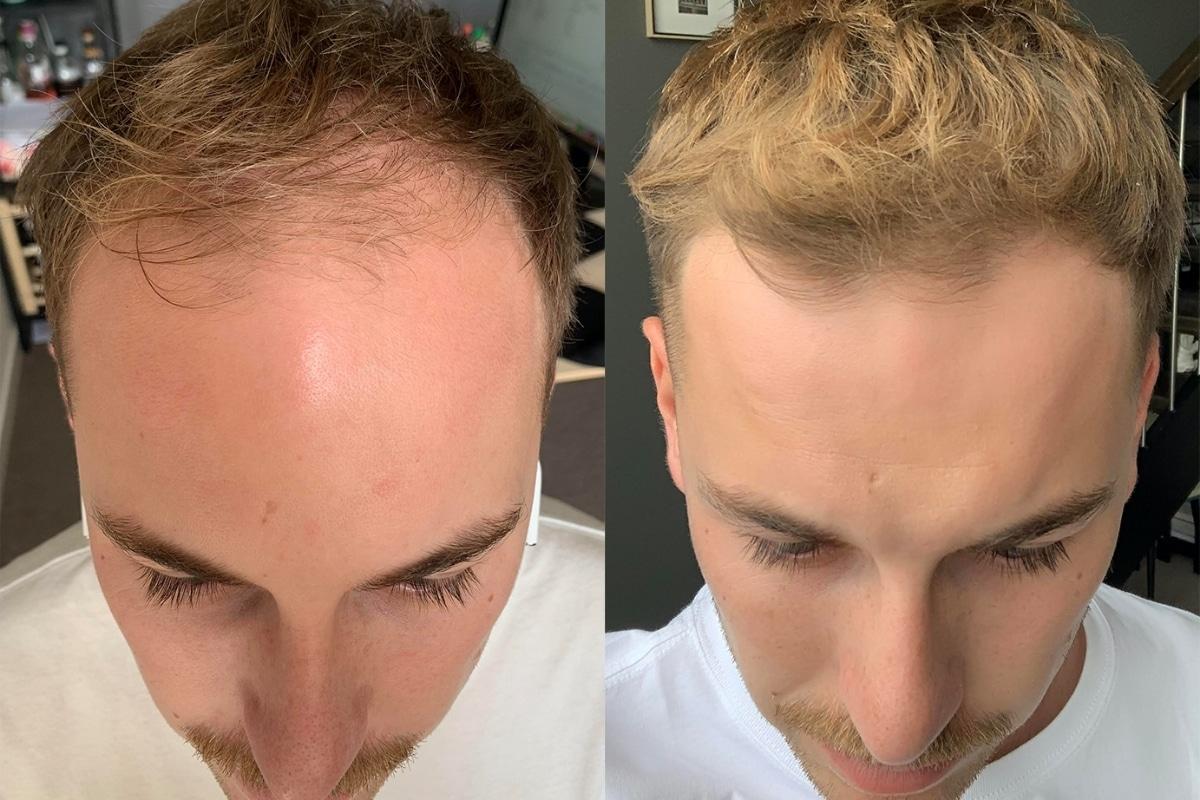 Mosh Hair Success